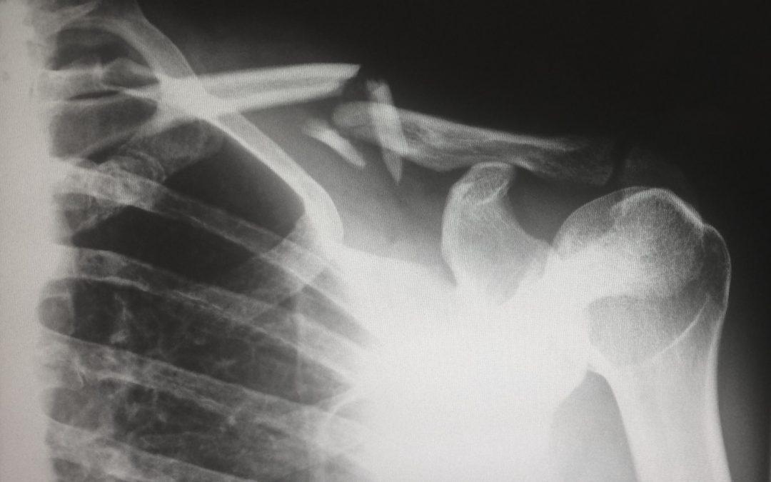 Mercy Grace Blog - Broken Bones